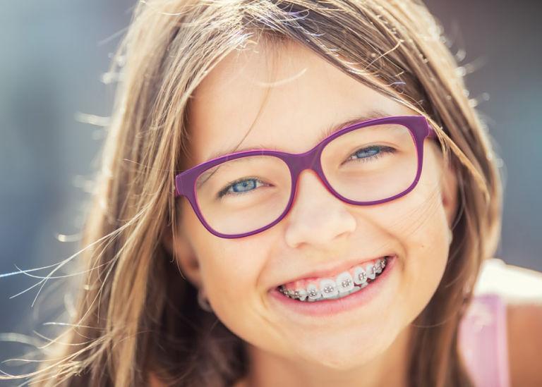 Hiện nay có nhiều phương pháp niềng răng mắc cài kim loại