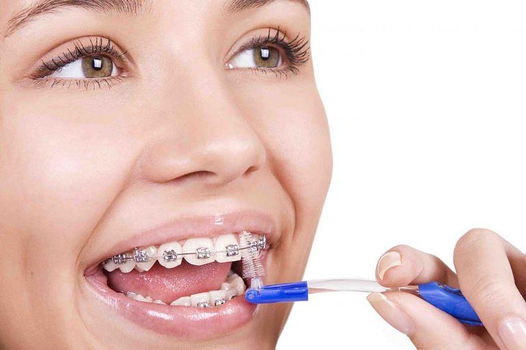 Bạn chú ý vệ sinh răng miệng sạch sẽ trong thời gian chỉnh nha