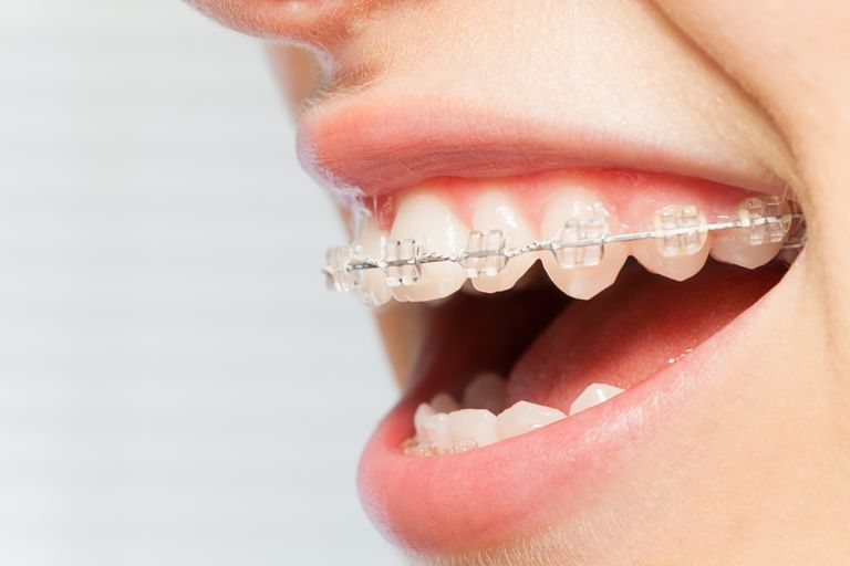 Niềng răng mắc cài sứ dây trong sử dụng dây thun trong suốt để cố định mắc cài
