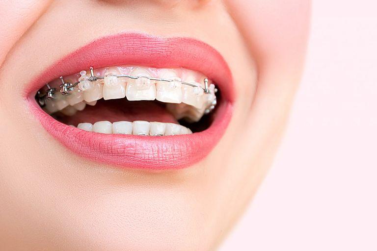 Niềng răng mắc cài sứ tự buộc là phương pháp được nhiều người lựa chọn