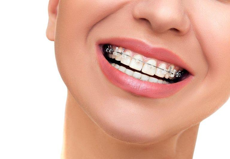 Niềng răng mắc cài sứ tự buộc mang đến nhiều ưu điểm cho người dùng