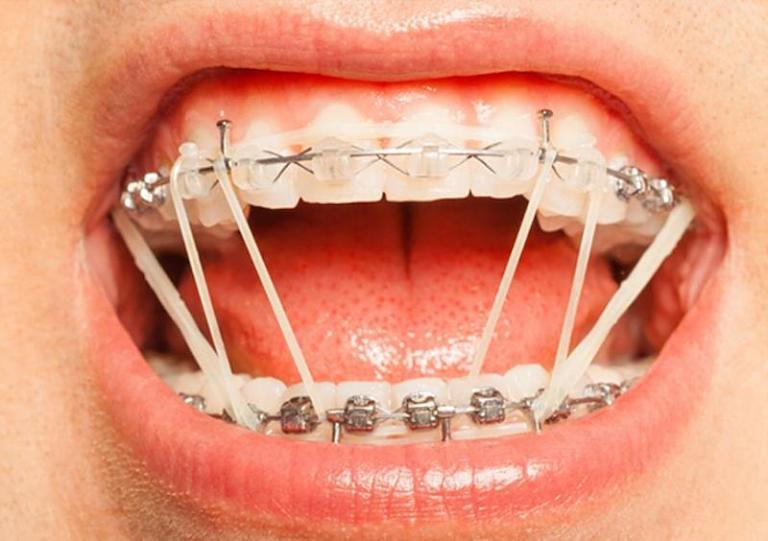 Niềng răng tại nhà bằng mắc cài tự chế khá phổ biến hiện nay