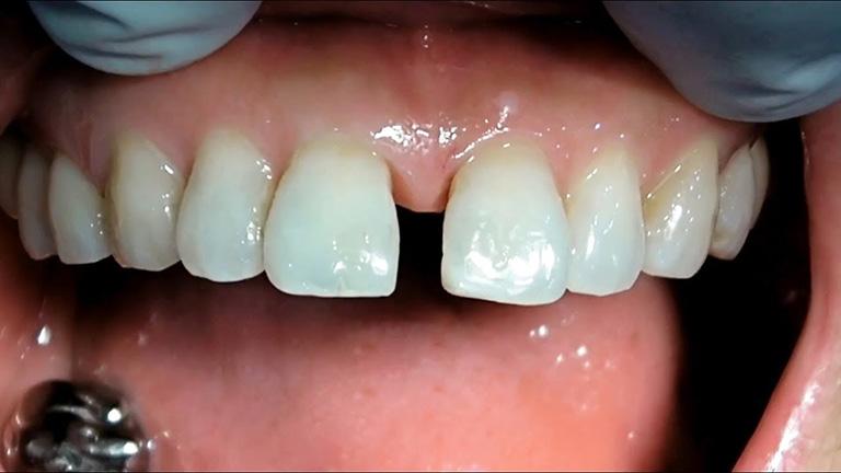 Răng thưa là tình trạng giữa các răng có các khe hở