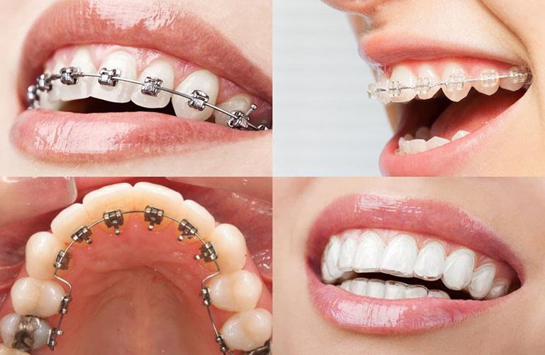 Những phương pháp niềng răng thưa phổ biến nhất hiện nay