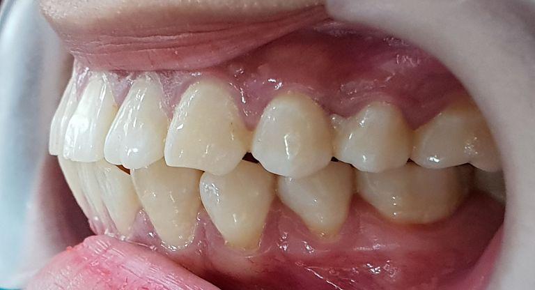Răng hô nặng cần được điều trị bằng phương pháp nha khoa chuyên sâu