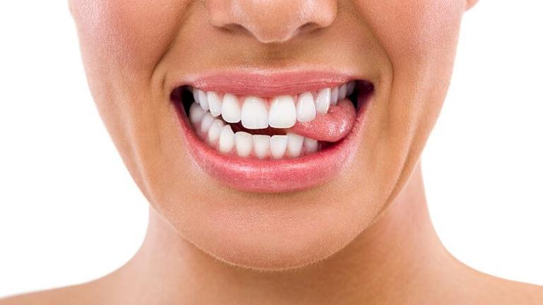 Dùng lưỡi đẩy giúp chỉnh răng hô nặng nhưng không cho kết quả cao