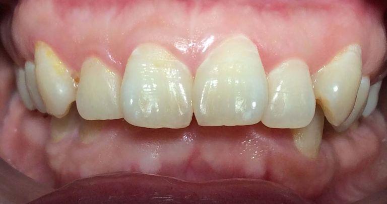 Răng hô nhẹ là một dạng sai lệch khớp cắn phổ biến