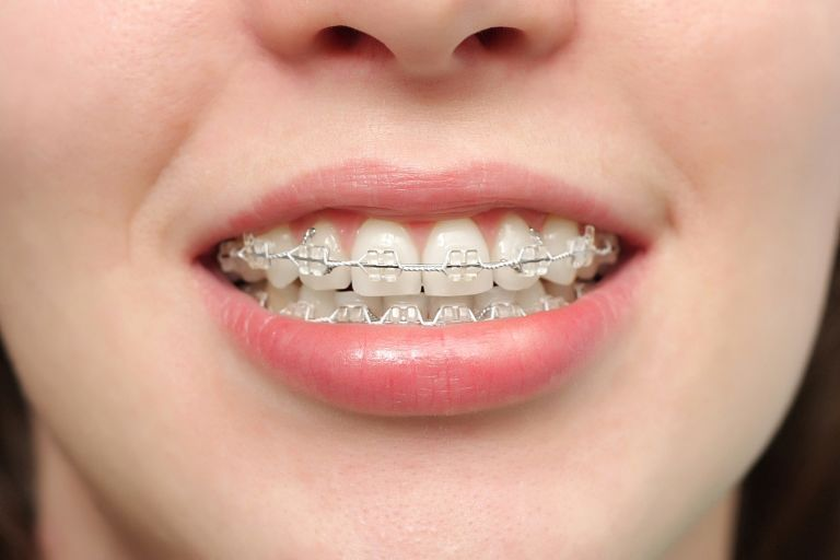 Niềng răng giúp khắc phục tình trạng răng hô hiệu quả