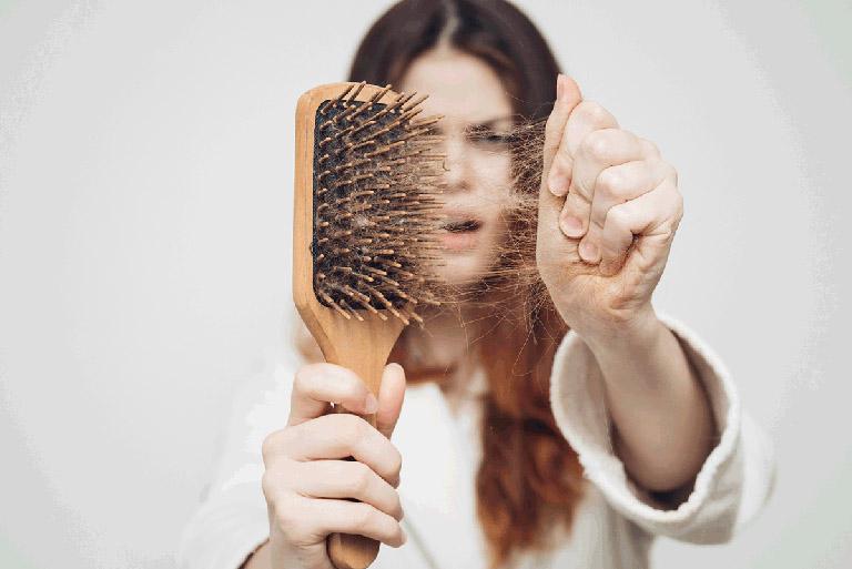 Thiếu vitamin có thể gây nên tình trạng rụng tóc
