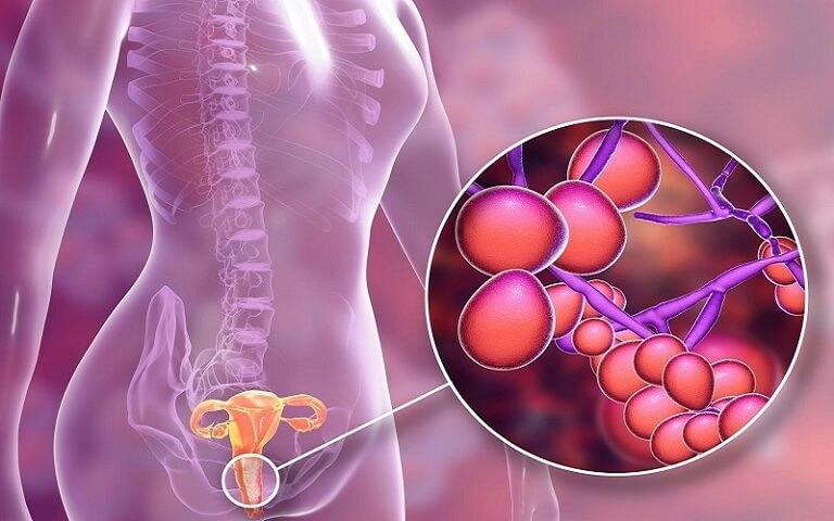 Cây trinh nữ hoàng cung có tác dụng ức chế vi khuẩn, kháng viêm