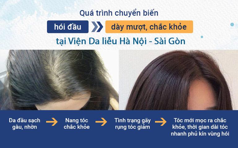 Quá trình chuyển biến nhanh chóng sau khi áp dụng giải pháp hỗ trợ điều trị rụng tóc của Viện Da liễu Hà Nội - Sài Gòn