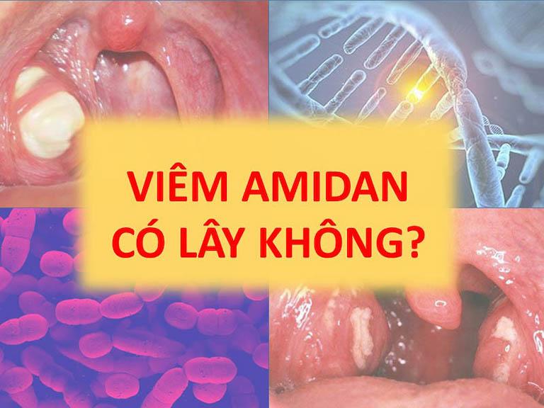 Bệnh viêm amidan có lây không là thắc mắc của khá nhiều người bệnh khi không may bị bệnh lý này