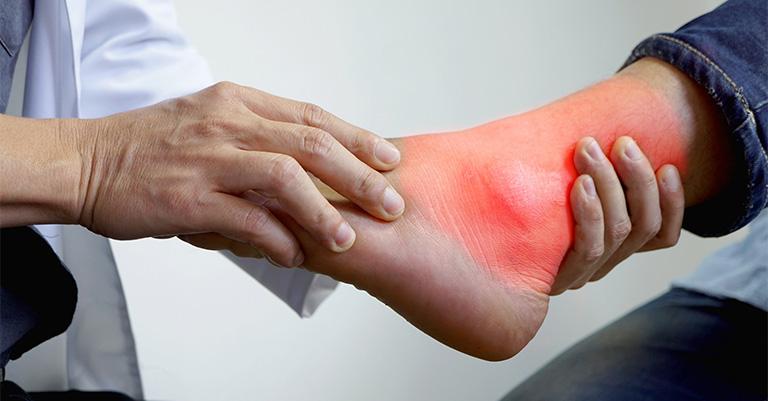 Bệnh gout thường có biểu hiện sưng đỏ ở các khớp