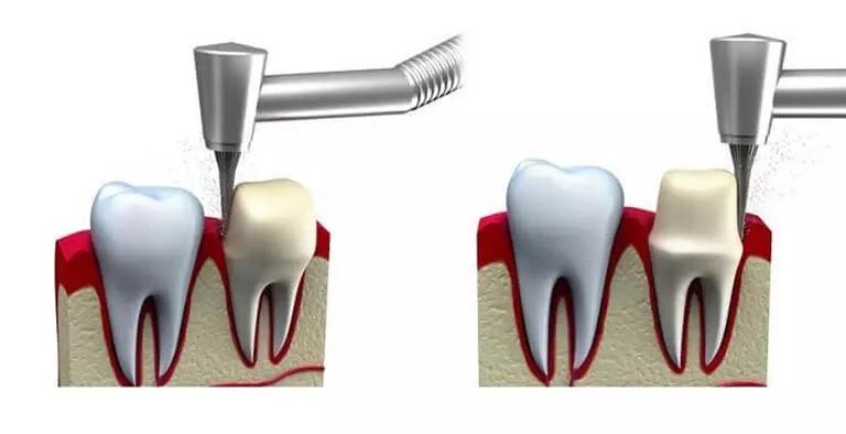 Gây tê cho bệnh nhân và tiến hành mài cùi răng